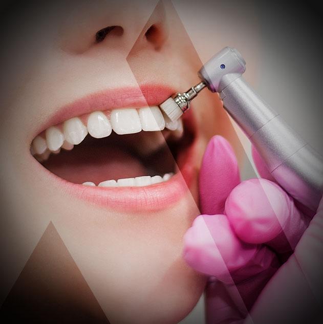 Zähne bleichen Kosten Türkei