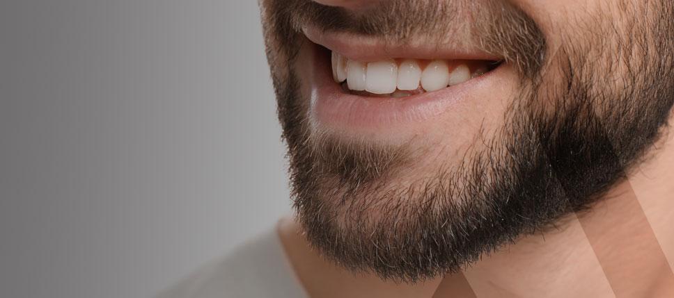 Hollywood Lächeln Türkei