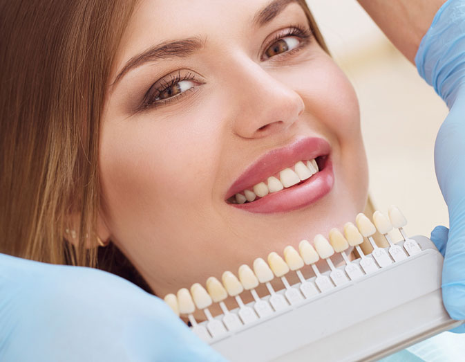 Zahnfacetten